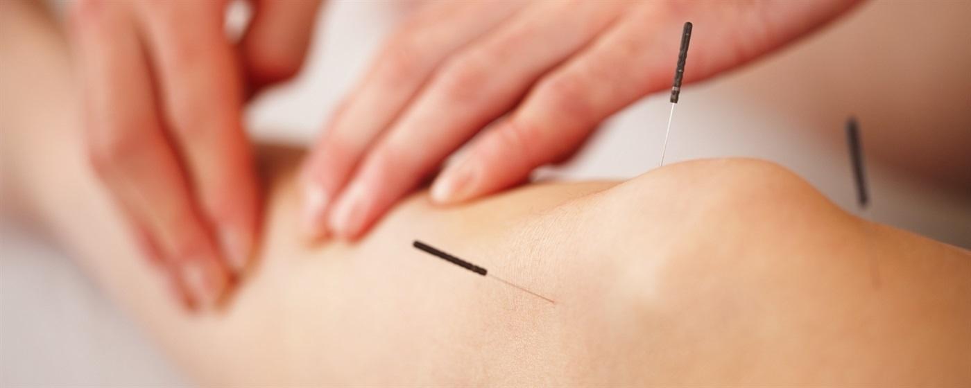 acupunctuur behandeling kosten